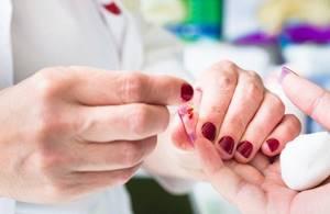 Гипохромия в общем анализе крови – что это?