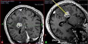 Биопсия мозга: особенности проведения процедуры