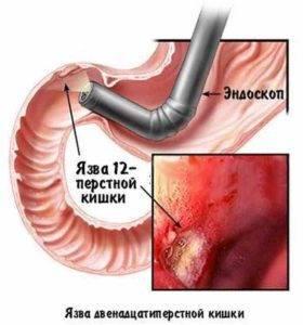 Болит горло, желудок после ФГДС – что делать и опасно ли это?