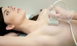 УЗИ молочных желез: что показывает, нормы, расшифровка