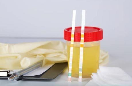 Эритроциты в моче повышены: почему и что делать?