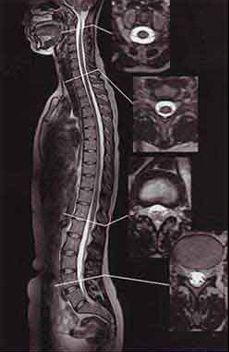 МРТ позвоночника: что показывает, как проходит процедура?
