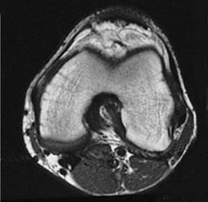 МРТ колена: что нужно знать?