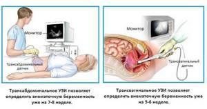 На каком сроке видно беременность на УЗИ?