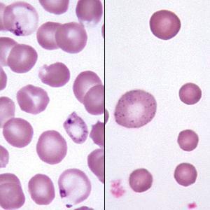 mcv в анализе крови: расшифровка, нормы, что это такое?
