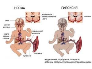 УЗИ головы новорожденному и ребенку до года: нормы, что показывает?