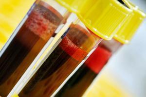 АПТВ в анализе крови – что это?