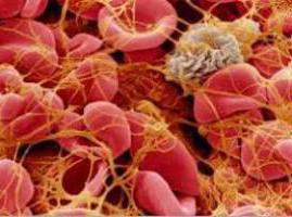 Фибриноген в крови: что это, норма и причины отклонения