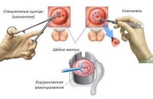 Биопсия шейки матки при эрозии: что это, особенности проведения процедуры