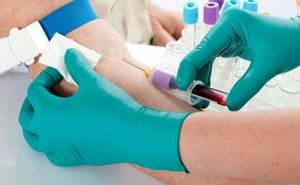 Тромбоциты повышены в крови у взрослого: что это значит, причины, лечение