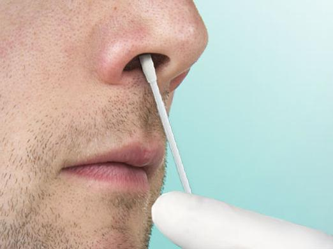 Мазок на стафилококк из зева и носа: как берут, подготовка к анализу, норма