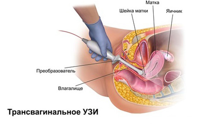 Фото размера плода на УЗИ на 9 неделе беременности