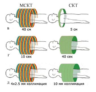 Компьютерная томография позвоночника и его отделов (КТ): как делают?