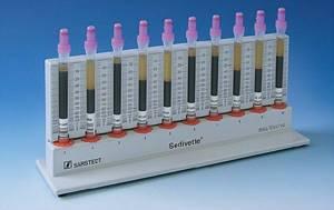 Расшифровка pct в анализе крови: нормы, что показывает?