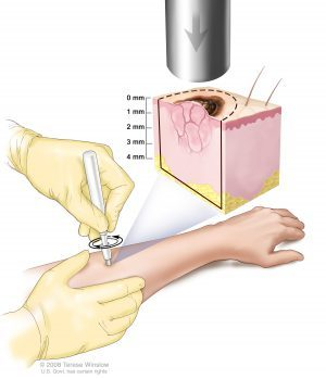 Биопсия кожи: что это, показания к проведению, виды