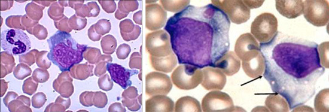 Атипичные мононуклеары в общем анализе крови – что это такое?