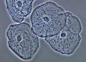 Норма эритроцитов в моче у взрослых и детей