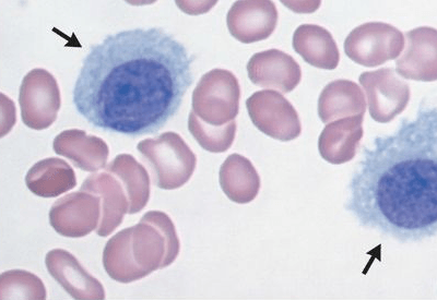 Анизохромия в общем анализе крови – что это?