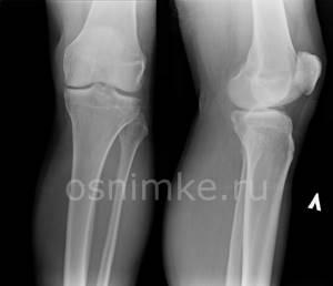 Рентген ноги: фото снимков, что видно?