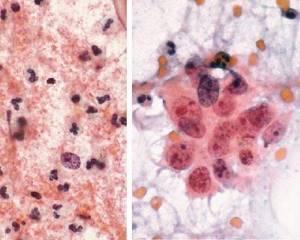 Плоский эпителий в мазке на цитологию – что означает?