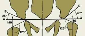 УЗИ тазобедренных суставов у грудничков: норма углов, расшифровка