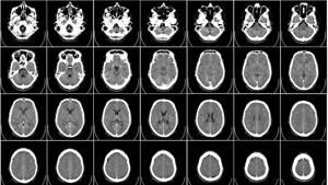 Компьютерная томография головы (КТ) – что показывает?
