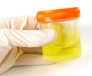 Лейкоциты в моче – что это значит?