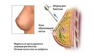 Биопсия молочной железы: больно ли это, как делают, виды