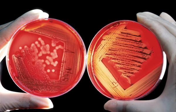 Как обозначается гемоглобин в анализе крови?