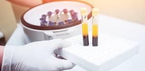 Повышенный белок в крови - что это значит?