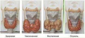 Расшифровка результатов УЗИ щитовидной железы