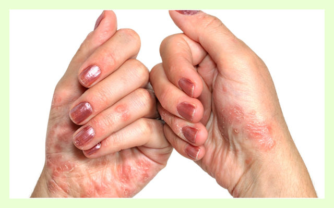 Крем-воск Здоров от псориаза: отзывы, помогает ли?