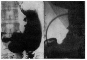 Рентген желудка с барием: подготовка, последствия, что показывает?