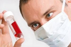Повышенные лимфоциты в крови у женщин: причины, о чем это говорит?