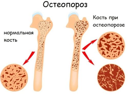 Щелочная фосфатаза понижена у женщин: причины, что это значит?