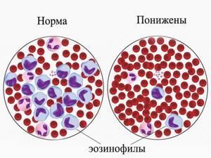 Незрелые гранулоциты повышены: что это значит, причины отклонения от нормы