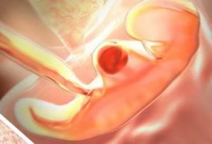 УЗИ на 5 неделе беременности: фото, что покажет?