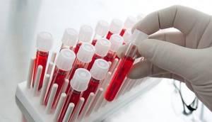 Расшифровка анализа крови у детей: таблица, результаты