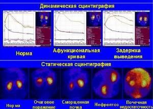 Сцинтиграфия почек: динамическая и статическая