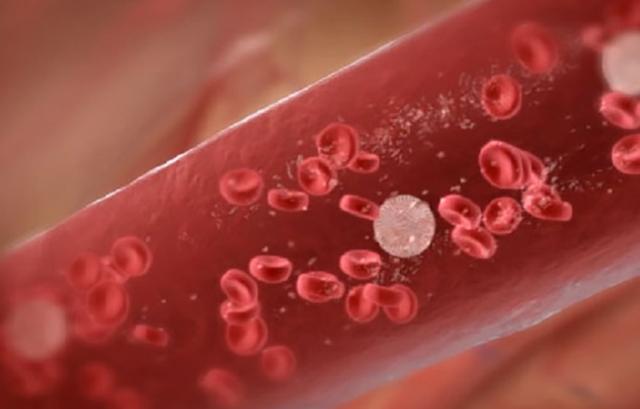 Лимфоцитоз у взрослых: причины, симптомы, как лечить?