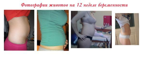 УЗИ скрининг на 12 неделе беременности: нормы, фото, как делают?