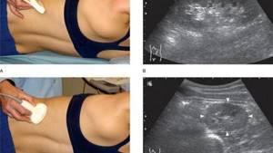УЗИ почечных артерий: подготовка, как проходит?