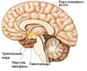 МРТ гипофиза с контрастом: что показывает и как его делают?