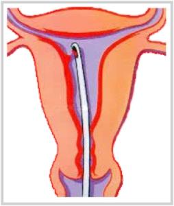 Биопсия эндометрия: как делают, что показывает?