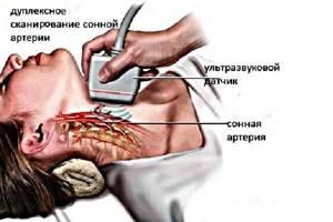 УЗИ сосудов головы и шеи: что показывает?