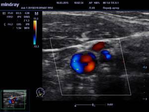 Дуплексное сканирование брахиоцефальных артерий – что это такое?
