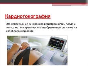 ЭКГ при беременности – можно ли делать?
