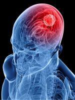 Противопоказания к МРТ: какие они бывают?