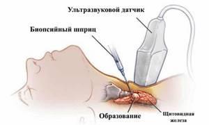 Биопсия щитовидной железы: как делают, показания к проведению, результаты