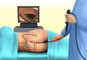 Подготовка к колоноскопии: как подготовиться, если процедура утром?